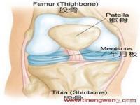 膝关节的损伤原因及治疗方法